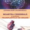 Editorială: MOARTEA CEREBRALĂ şi problema TRANSPLANTULUI DE ORGANE de Ştefania Kory Calomfirescu