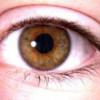 SRG: Aproximativ 140.000 de pacienţi sînt diagnosticaţi cu glaucom, în România